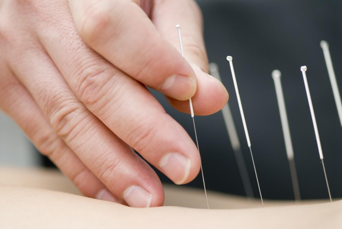 Acupuncturist applying acupuncture needles to skin