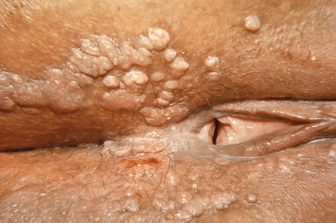 Syphilis on vagina. Image credit: CDC, 1969.