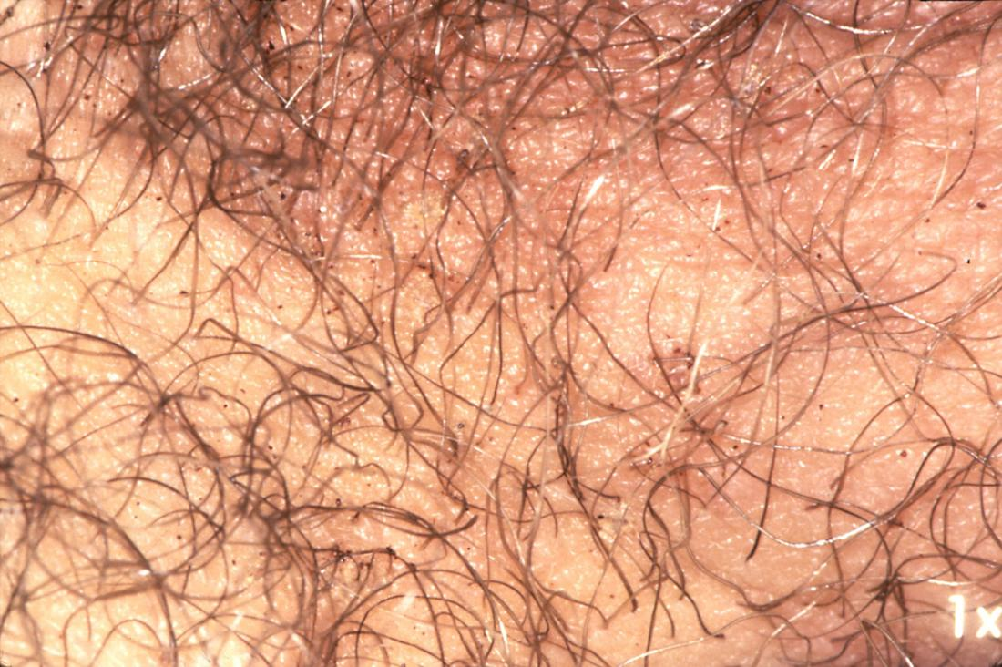 Pubic lice. Image credit: CDC/ Reed and Carnrick Pharmaceuticals, 1976.