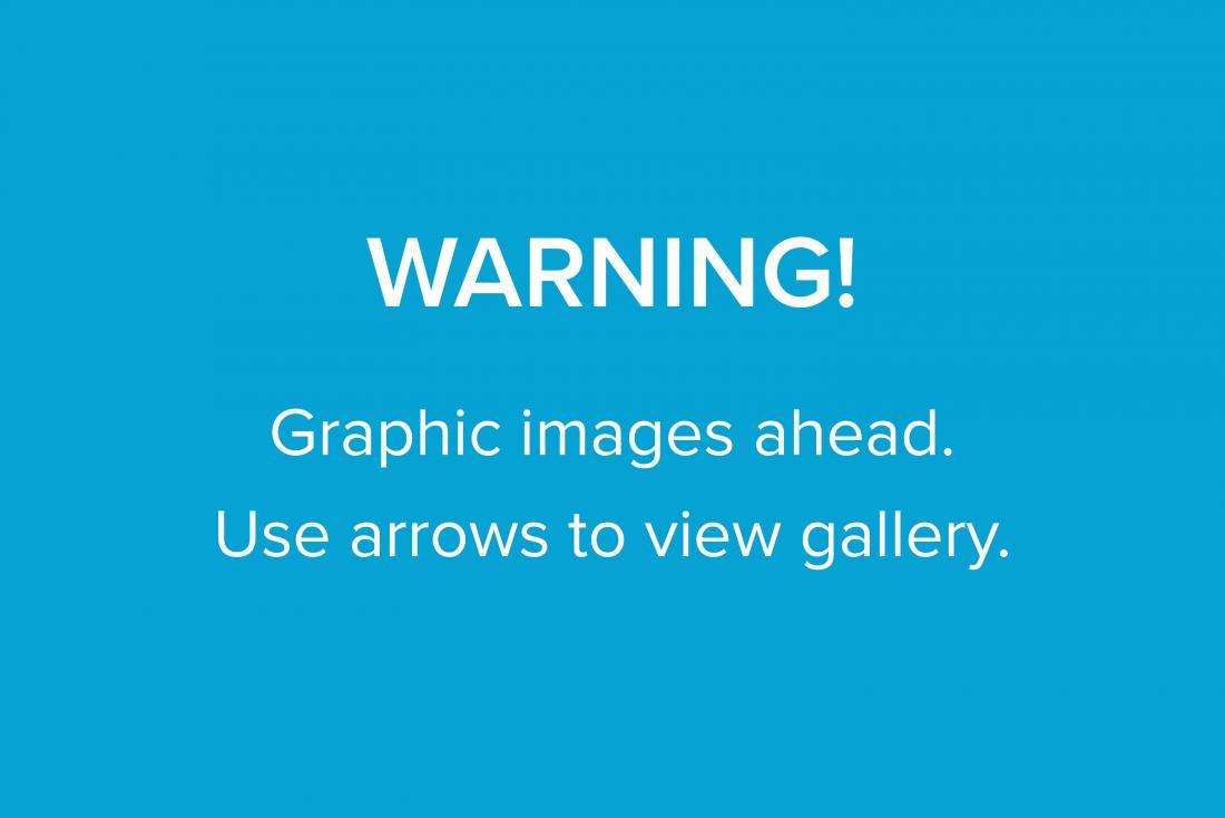 Graphic image warning