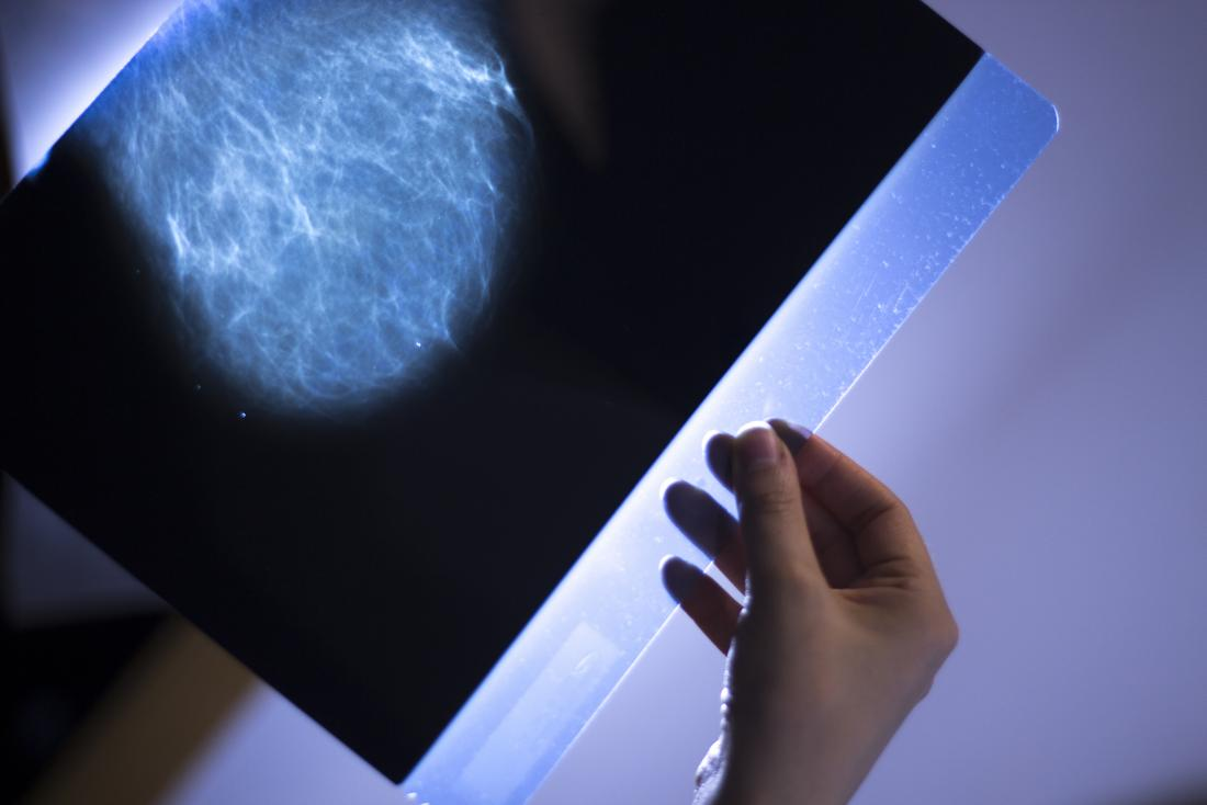 how fast can breast cancer spread in one year