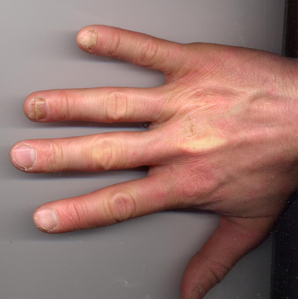 psoriatic arthritis nails onycholysis