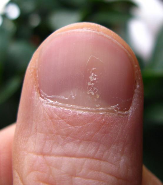 psoriatic arthritis nails pitting
