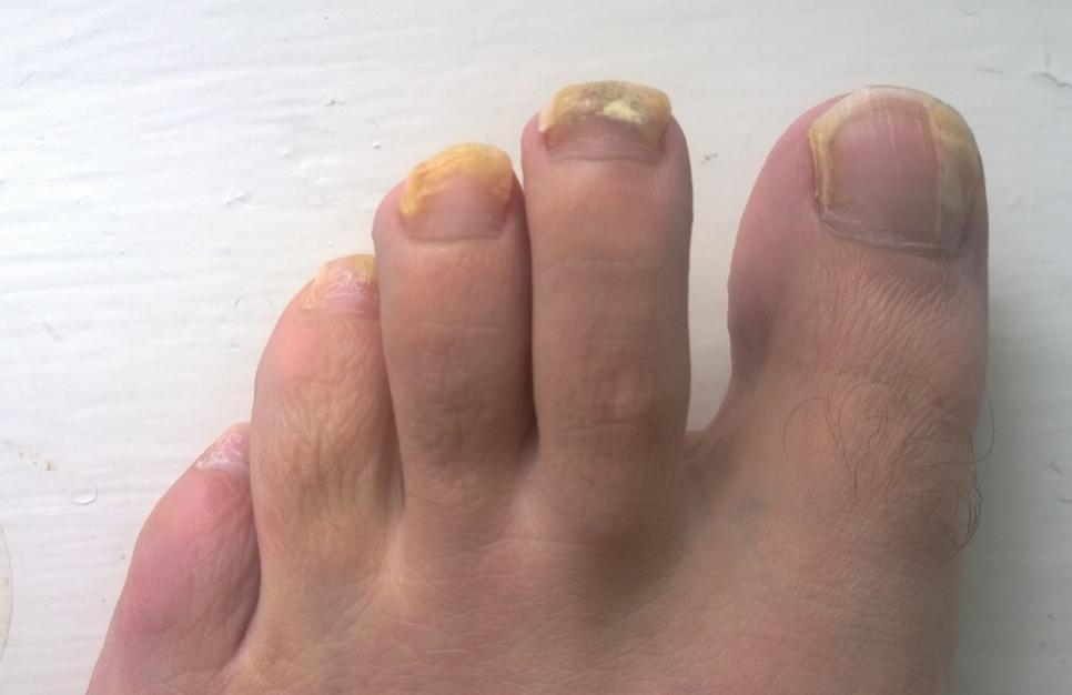 psoriatic arthritis nails fungal infection