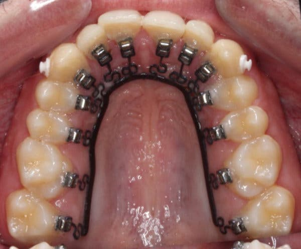 Technology by Mechanodontics, a start-up, straightens teeth from behind.